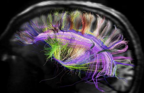图像拼接的成果是,这个大脑模型可以让用户在其中