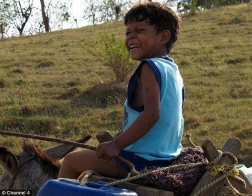背上长乌龟壳_哥伦比亚男孩患先天疾病背上长乌龟壳