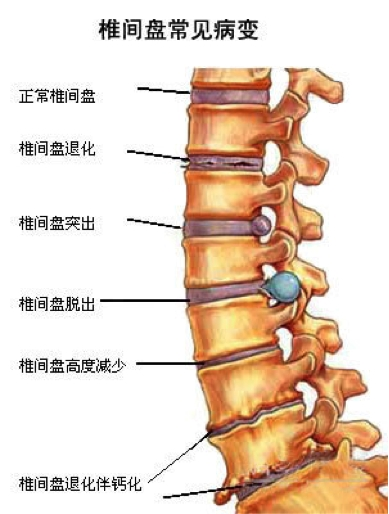 腰椎图片位置示意图-打印 不止是内马尔 你也得注意自己的小蛮腰 元器
