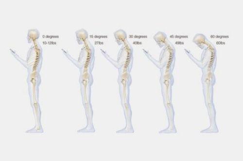 低头玩手机 脊椎承重54斤