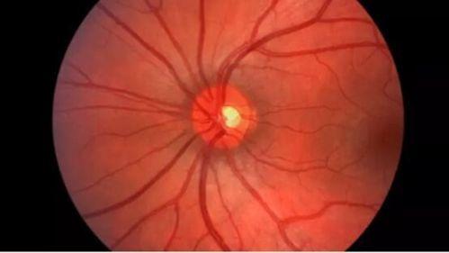 谷歌DeepMind开发人工智能可有效检测眼疾0