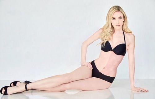 神奇的嵌合体 美女模特泰勒拥有两套DNA0