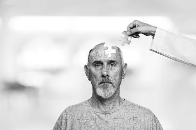 人工智能有望成为阿尔茨海默病的有效预防工具0